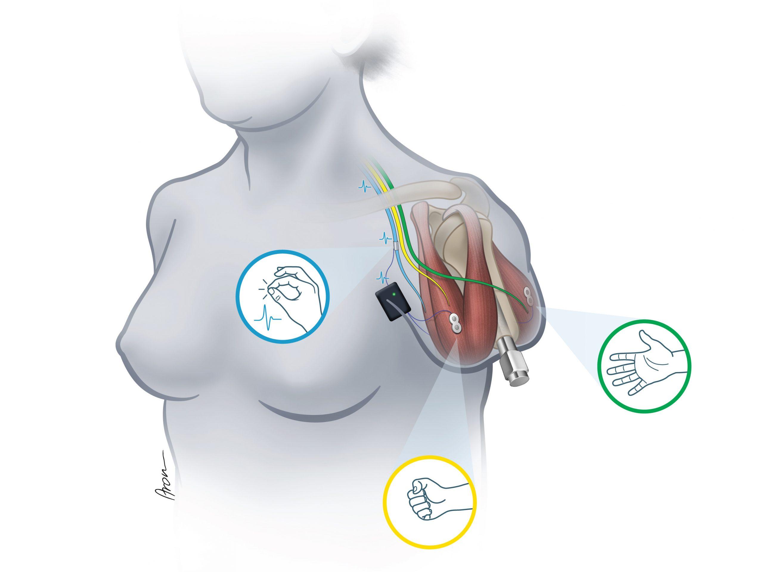 Das hier dargestellte System erlaubt erstmalig die bidirektionale Übertragung von Biosignalen in eine prothetische Hand. Dies wird durch einen nervenchirurgischen Eingriff ermöglicht, der sowohl Muskelsignale als auch Nervensignale ableitet und über ein speziell angefertigtes Titanimplantat an die Prothese überleitet.